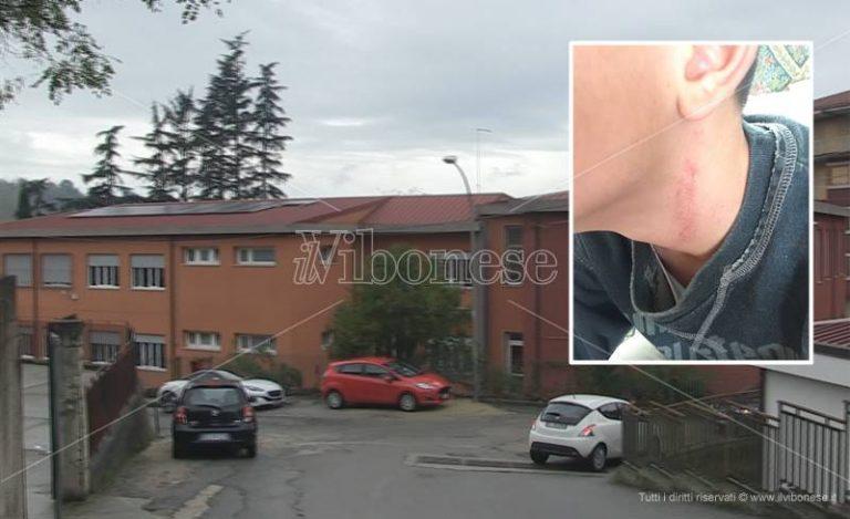 """Minore """"picchiato"""" a Soriano, la dirigente sanziona l'alunno: «Ferite provocate autonomamente»"""