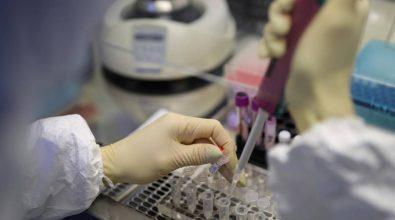Covid, al via anche a Vibo la terapia con anticorpi monoclonali